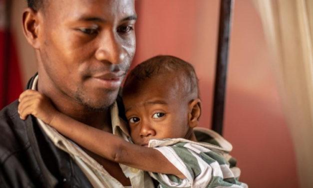 Epidemija morbila na Madagaskaru uzela preko 900 života